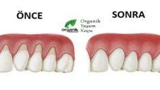 Diş Eti Çekilmesinin Doğal Tedavi Yöntemi