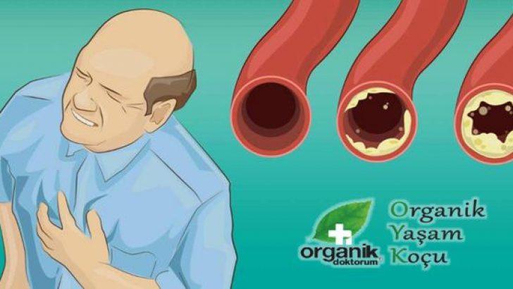 Arterlerinizi Organik Yollardan Temizleyen 9 Yiyecek