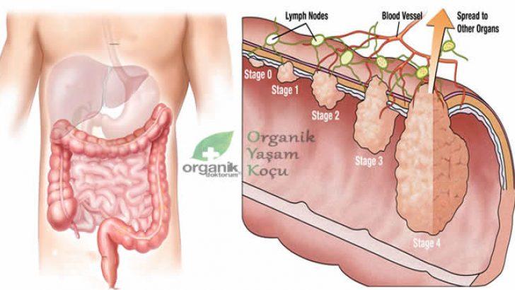 Bağırsak Mukusunu Temizleyen Organik Kür