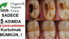 Sadece 5 Adımda Diş Çürüklerinizden Kurtulmak Mümkün..!
