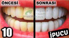 En Etkili Diş Beyazlatan 10 Yöntem