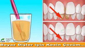 Diş Taşları Temizliğinin En Etkili 3 Yolu