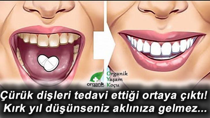 Bu Yöntem Çürük Dişleri Eski Haline Dönüştürüyor..!