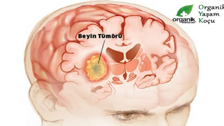Dikkat..! Bu Belirtiler Beyin Tümörünün Habercisi.
