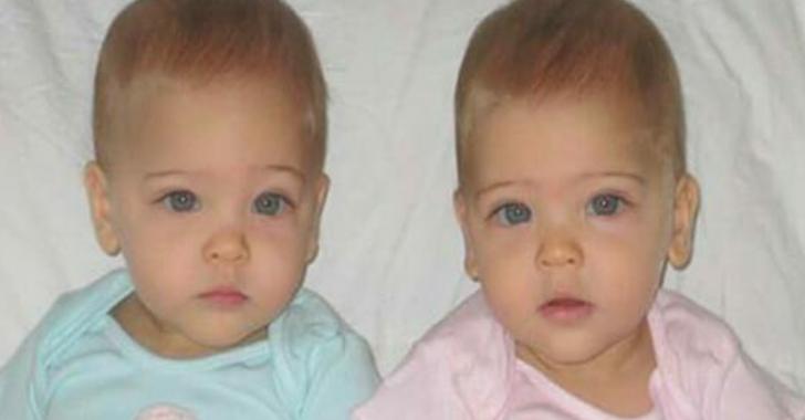 8 Sene Evvel Bebeklere Dünyanın En Güzel İkizleri Bakın Şimdilerde Ne Haldeler
