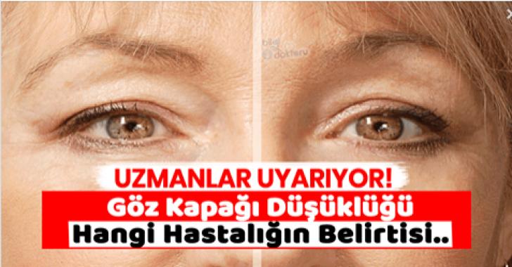 Göz Kapağı Düşüklüğü Ciddi Bir Sorunun Habercisidir
