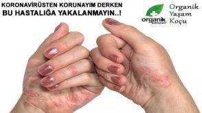 Aşırı kolonya ve dezenfektan kullanımı bu hastalığa yol açıyor..!
