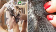 Saç Derisinde ki Egzema İle Nasıl Başa Çıkılır?