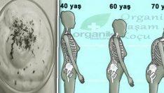 Kemik Erimesine Birebir Organik Kür Tarifi
