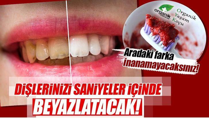 Dişlerinizi anında Beyazlatacak Mucize Tarif
