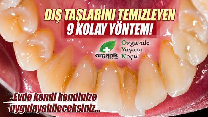 Evde Diş Tartarlarını Temizleyen 9 Etkili Yöntem