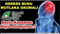 Beyin Kanaması Geçirdiğinizin Belirtileri
