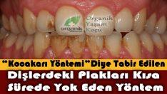 Diş Tartarlarından Bu Koca Karı Yöntemi ile Kurtulun