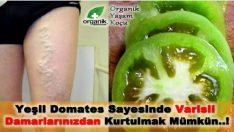 Varisli Damarlarınızdan Yeşil Domates ile Kurtulun