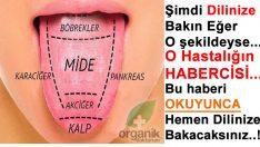 Dilinizde meydana gelen bu görüntü o hastalığın habercisi..