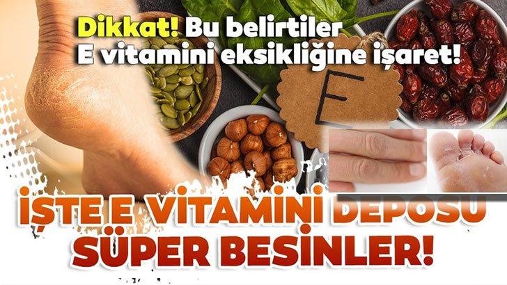 E Vitamini Eksikliğinde Bu Belirtilere Dikkat…